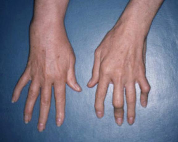 early rheumatoid arthritis fingers